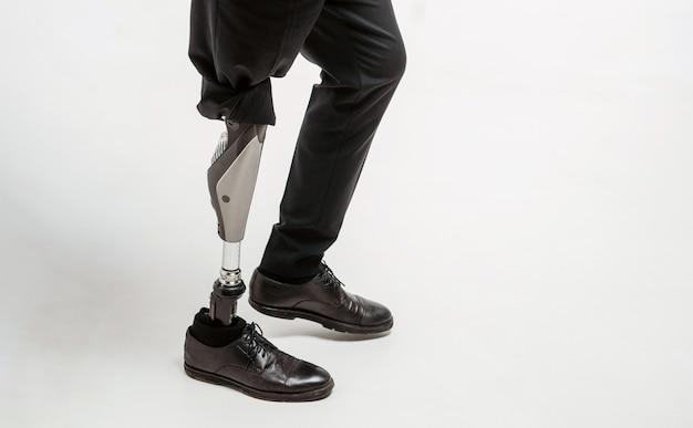 Gehandicapte jonge man met prothetische been, kunstmatige ledemaat concept