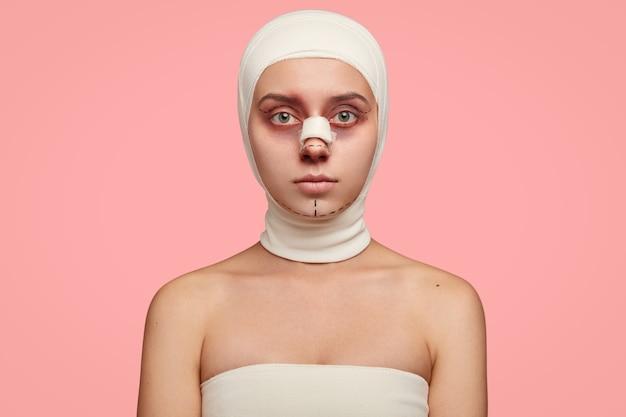 Geïsoleerde shot van meisje heeft blote schouders, gezicht gemarkeerd in lijnen, omwikkeld met verband, voorbereid op gezichtsbehandeling