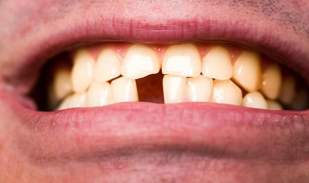 Gele slechte tanden. man zonder één voortand. geen tanden.