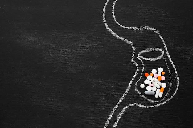 Getrokken van spijsverteringsstelsel met pillen