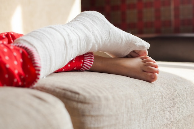 Gewond been van een onherkenbaar meisje in het gips dat thuis op de bank ligt