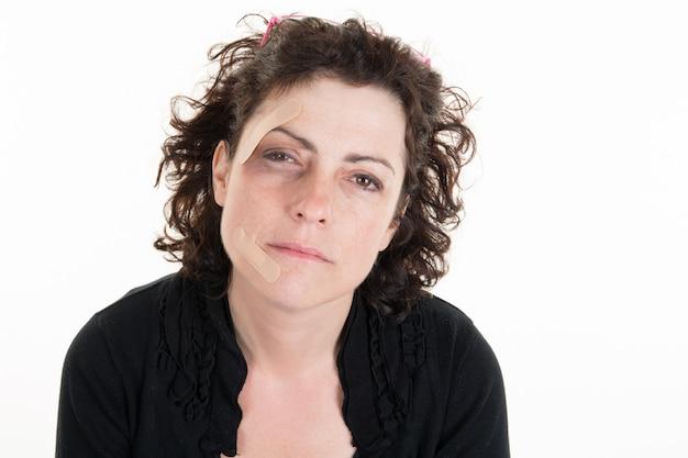 Gewonde vrouw met tekens van slagen op haar gezicht na een familiediscupte
