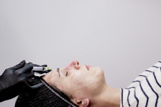 Gezicht mesotherapie procedure in een schoonheidssalon. mesotherapie, biorevitalisatie.close-up.