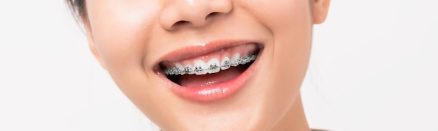 Gezicht van een jonge glimlachende aziatische vrouw met steunen op tanden