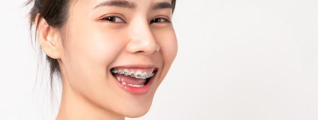 Gezicht van een jonge lachende aziatische vrouw met accolades op de tanden, orthodontische behandeling.
