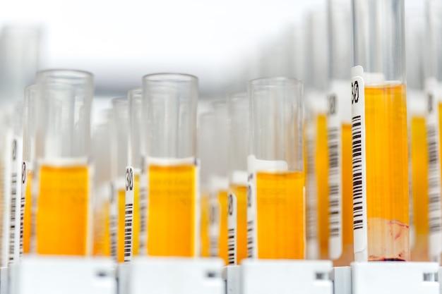 Glazen laboratoriumbuisjes gevuld met oranje vloeistof voor een experiment in een wetenschappelijk onderzoekslaboratorium