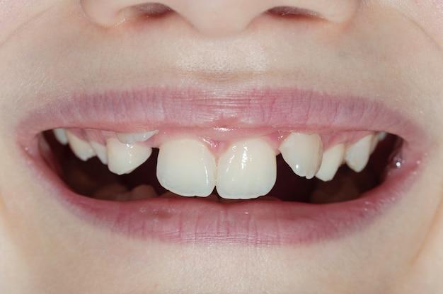 Glimlach van een jongen met groeistoornissen van de tanden.