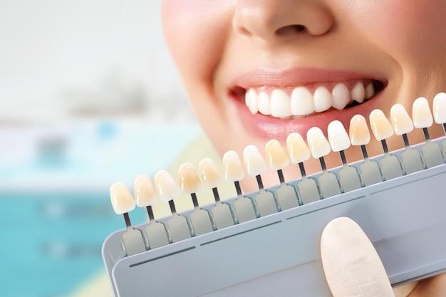 Glimlachende jonge vrouw. cosmetologische tanden bleken in een tandheelkundige kliniek. selectie van de toon van de implantaattand.