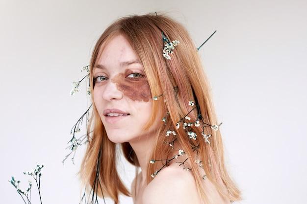 Glimlachende vrouw met donkere vlek op gezicht en bloemen