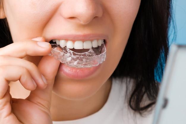 Glimlachende vrouw met perfecte en gezonde tanden met behulp van verwijderbare beugels