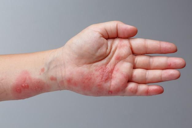 Gordelroos, zoster of herpes zoster-symptomen op de arm