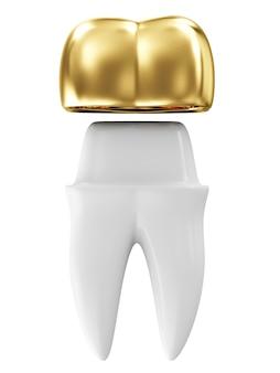 Gouden tandheelkundige kroon op een tand geïsoleerd op wit