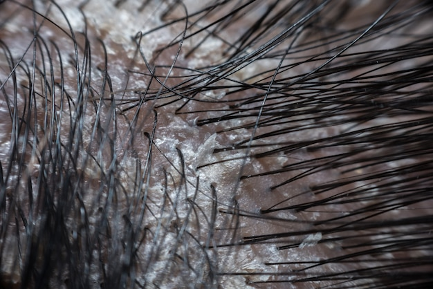 Haarhoofdhuid met roos en schilferende van psoriasis