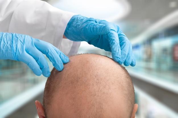 Haarverliezende man volwassen veroudering terug