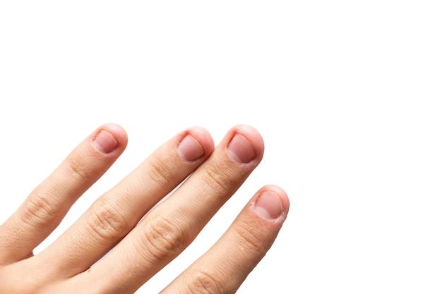 Hand met nagelprobleem. beschadigde vingernagels geïsoleerd op wit