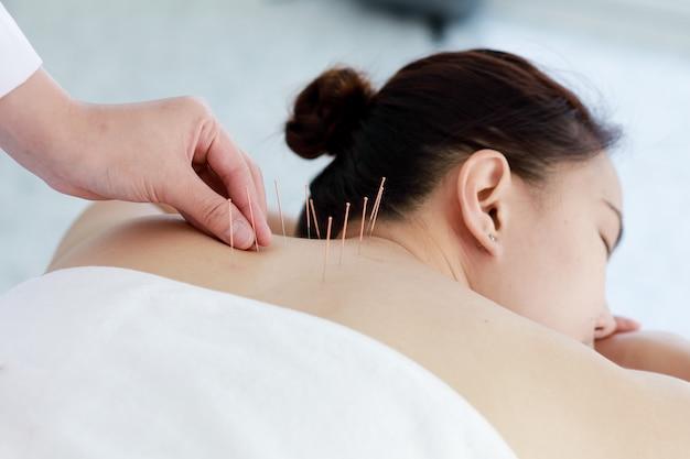 Hand van arts die acupunctuurtherapie uitvoert. aziatische vrouw die acupunctuurbehandeling ondergaat met een lijn fijne naalden die in de huid van haar lichaam in het kliniekziekenhuis wordt ingebracht
