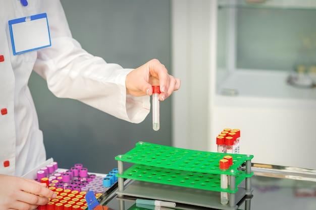 Hand van laboratoriumtechnicus of verpleegkundige neemt lege bloed reageerbuis uit rek in het onderzoekslaboratorium