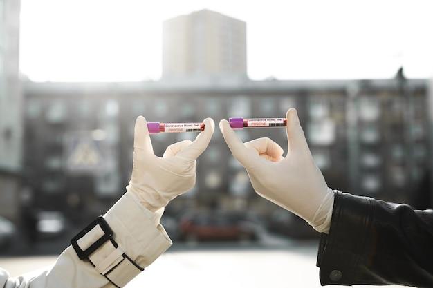 Handen man en vrouw houdt een reageerbuis met een bloedmonster