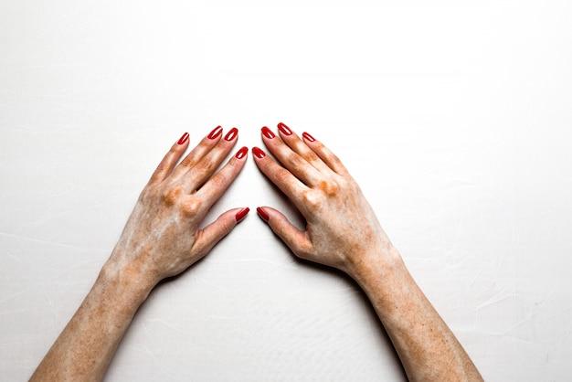 Handen met pijnlijke huid op een witte achtergrond.