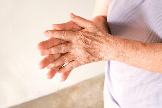 Handen van de oude vrouw die samen met sproeten en rimpels wrijven