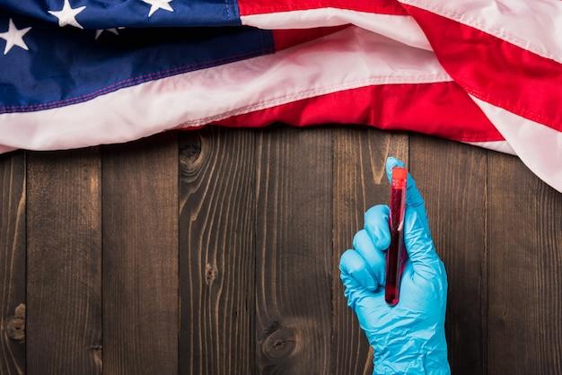 Handen van dokter die handschoenen draagt met bloedonderzoekbuis coronavirus met vlag verenigde staten amerika