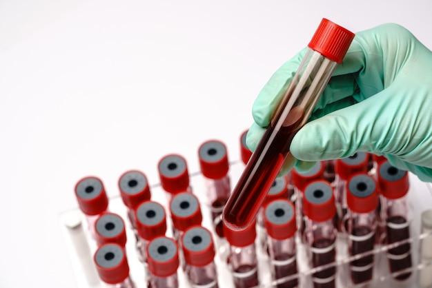 Handen van een laboratoriumtechnicus met een reageerbuis met bloedmonster en een rek met andere monsters op grijs.
