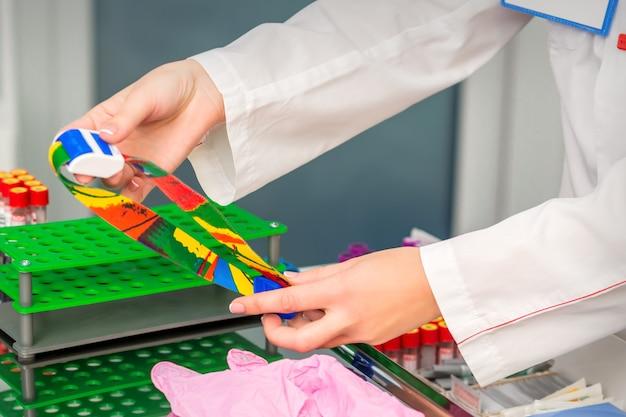 Handen van verpleegkundige bereiden medische tourniquet voor bloedafname in medische kantoor