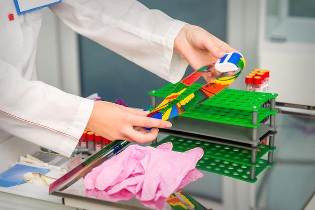 Handen van verpleegster bereiden medische tourniquet voor bloedafname in medische kantoor