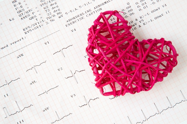 Hart- en elektrocardiogramopname