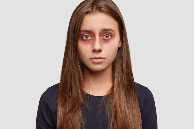 Headshot van aantrekkelijke brunette vrouw met blauwe plekken rond de ogen, kijkt met een ellendige uitdrukking rechtstreeks naar de camera
