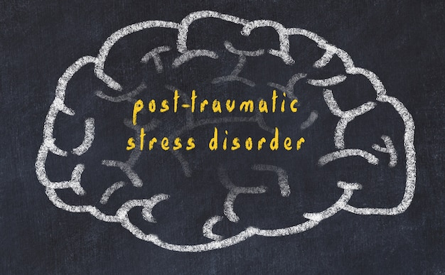 Hersenen met inscriptie post traumatische stressstoornis