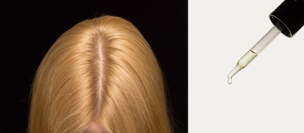 Het hoofd van de vrouw op het haar met een scheiding in het midden. pipetteer cosmetica huidverzorgingsolie voor haar