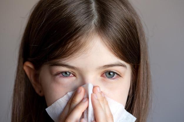 Het jonge meisje is allergisch, ze snuit haar neus in een servet. conjunctivitis, tranenvloed, rode ogen