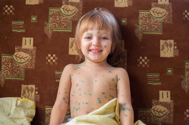 Het kind dat waterpokken heeft zit in een bed en glimlacht vreugdevol
