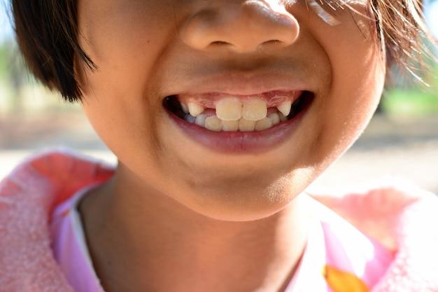 Het kindmeisje toont tandbederf en gebroken tand