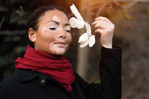 Het mooie afrikaanse meisje met vitiligo die zich op de straat bevinden snuift de lentebloemen.