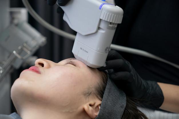 Hifu-behandeling op vrouwelijk gezicht. high intensity focused echografie. anti-aging behandeling en plastische chirurgie concept.