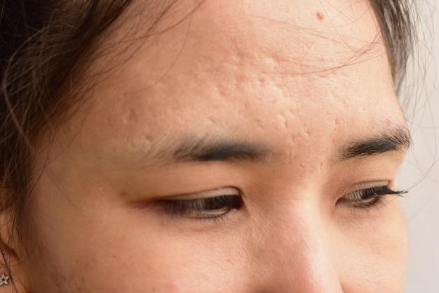 Huidproblemen en rimpels op het gezicht van vrouwen.