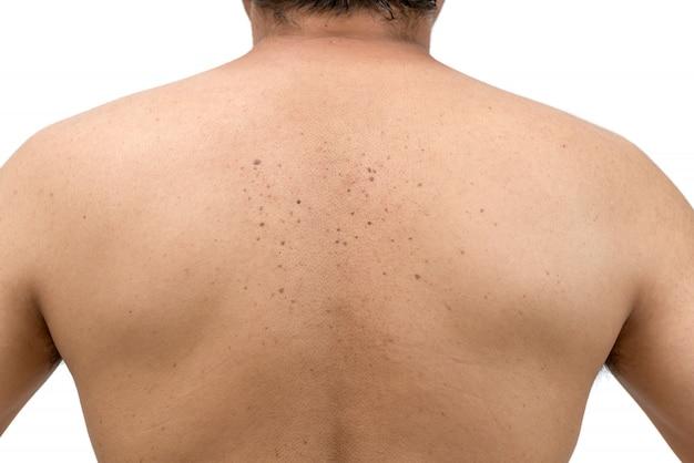 Huidtags of seborrheic keratosis op rug