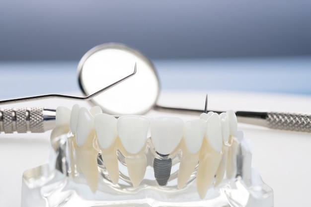 Implantaat en orthodontisch model en hulpmiddelen voor studenten om het leermodel te leren dat tanden toont.