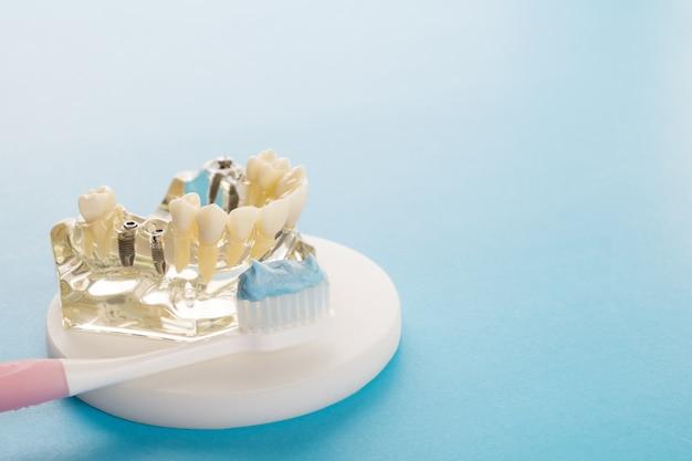 Implantaat en orthodontisch model voor student om leermodel te leren dat tanden toont.