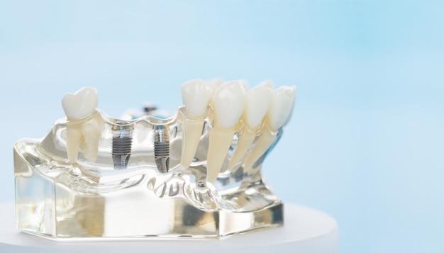 Implantaat en orthodontisch model voor student om leermodel te leren met tanden.