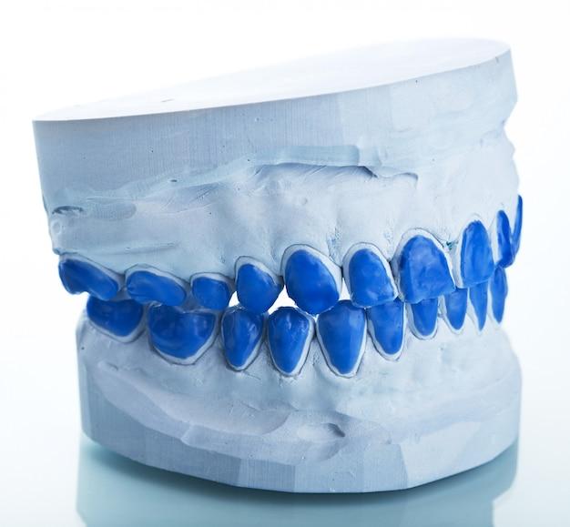 Individuele gipsen tandvormen voor het maken van trays