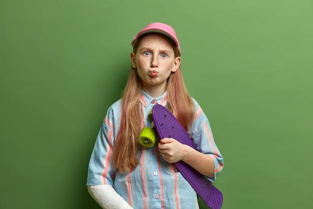 Indoor shot van grappige tienermeisje houdt lippen rond, houdt skateboard, gekleed in een gestreept shirt en pet, arm heeft gebroken na een val tijdens het skateboarden, grimas maakt. kinderen, levensstijl