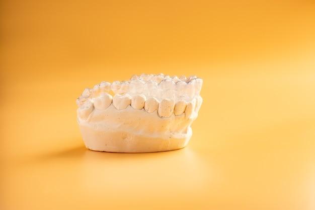Inivisalign beugel of aligner. een manier om een mooie glimlach en witte tanden te krijgen. onzichtbare invisalign plastic tandbeugels