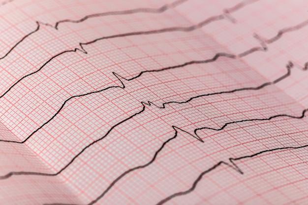 Interpretatie van het elektrocardiogram
