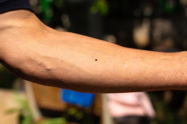 Ixodide bloedzuigende teek op de hand. loop in het voorjaar in het park. gevaarlijke insecten.