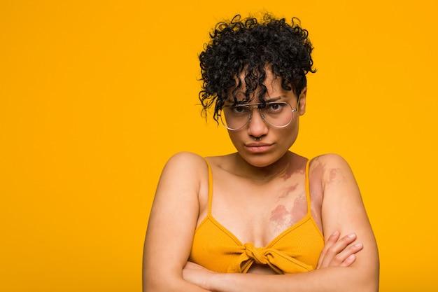 Jonge african american vrouw met huid geboorteteken fronsen gezicht in ongenoegen, houdt armen gevouwen.