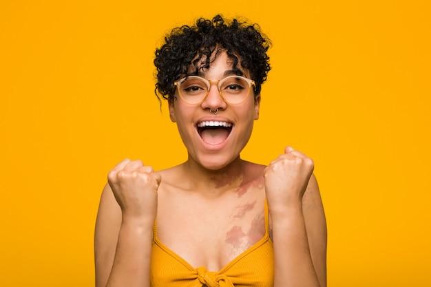 Jonge afrikaanse amerikaanse vrouw met huidgeboorteteken onbezorgd en opgewekt toejuichen. overwinning concept.