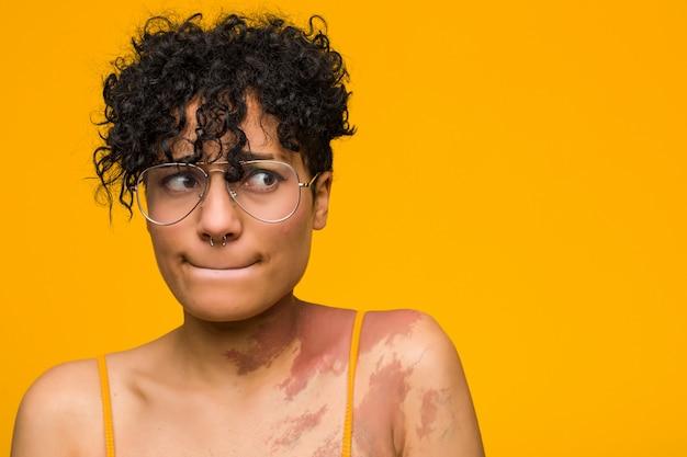 Jonge afro-amerikaanse vrouw met verward huidgeboorteteken, voelt zich twijfelachtig en onzeker.